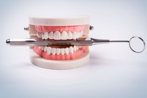 Denture Stabilisation With Implants Chessington