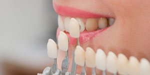 Porcelain Veneers & Crowns